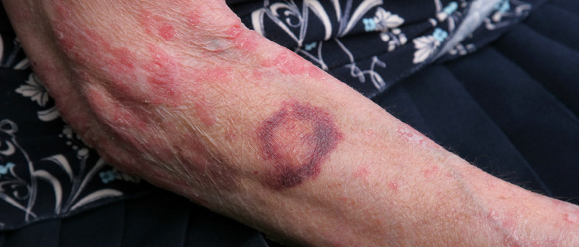 <h4>Protecting the <strong>elderly</strong> with thin and bruised skin</h4>
