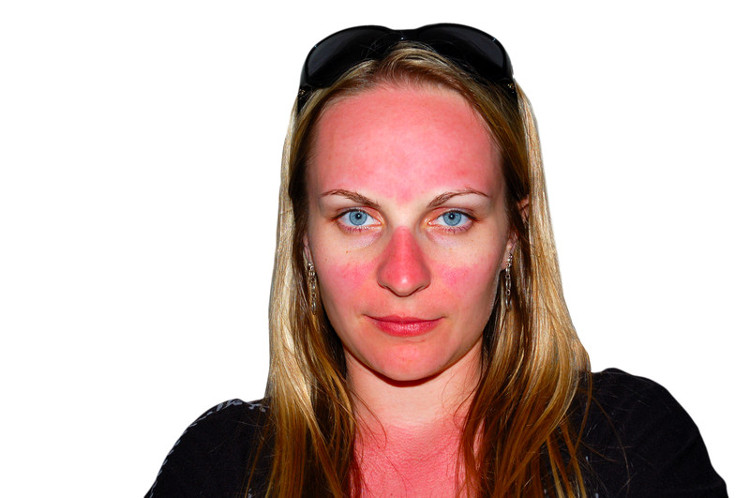 Handy tips for treating bad sun burn